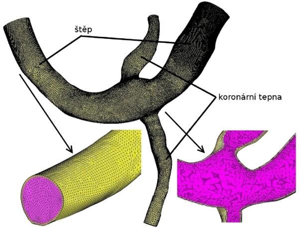 Modelování proudění nestlačitelné kapaliny ve zvoleném typu bypassové anastomózy -